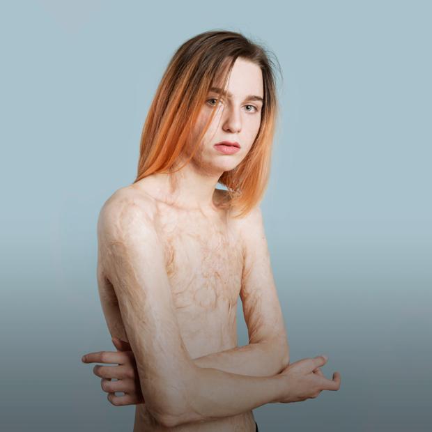Света Уголек — модель с ожогами 45 % тела  — Личный опыт на The Village
