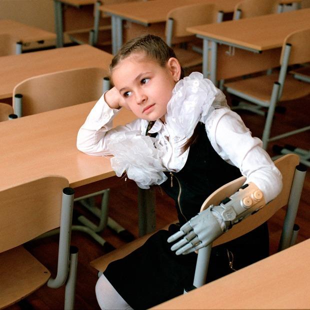 Киборги: Люди с бионическими протезами — Люди в городе на The Village