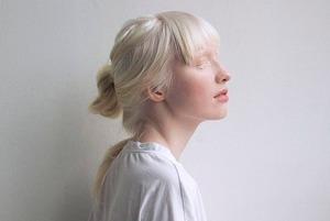 Женщины с альбинизмом — о карьере, комплексах и красоте
