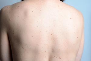 Шеллак, солярий и родинки: Разбираем мифы о раке кожи