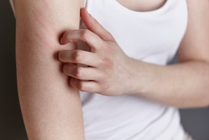 Что такое холодовая аллергия и надо ли ее лечить?