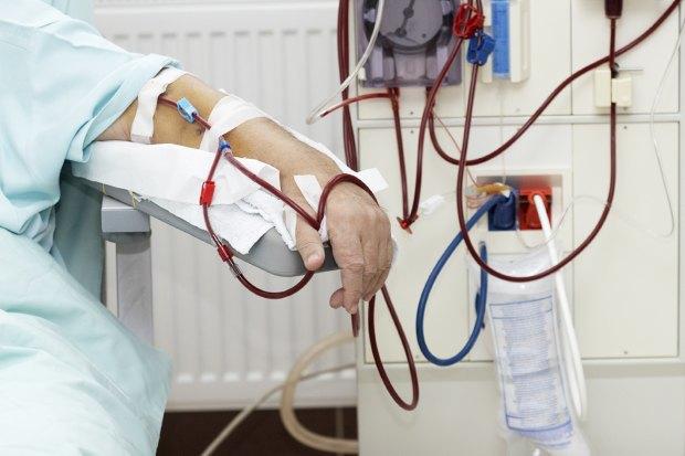 Возьми моё сердце: Как развивается трансплантология вРоссии. Изображение № 2.